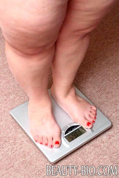 Алиментарно конституциональное ожирение