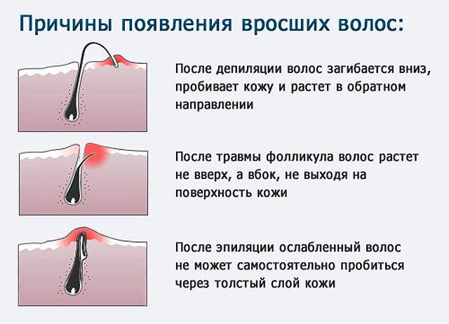 Эпиляторы - купить недорого эпилятор в Москве.